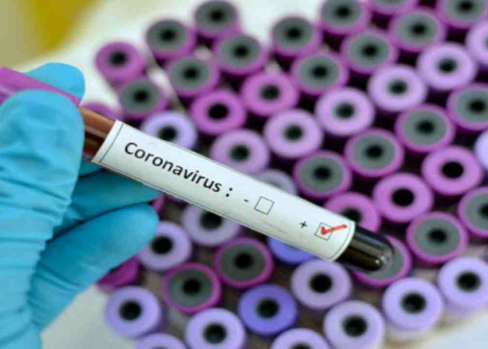 Blood sample with respiratory coronavirus positive